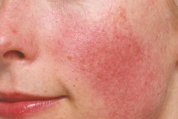 Trang điểm nhiều làm bào mỏng da