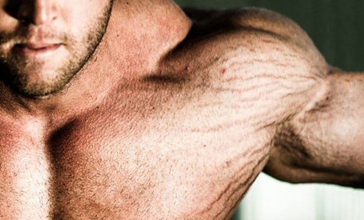 Vùng da dễ bị rạn khi tập thể hình
